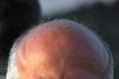 筋トレとプロテインでハゲる!?親父が薄毛だけどふさふさなオレの考え